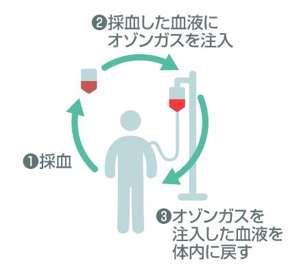 ①採血 ②採血した血液にオゾンガスを注入 ③オゾンガスを注入した血液を体内に戻す